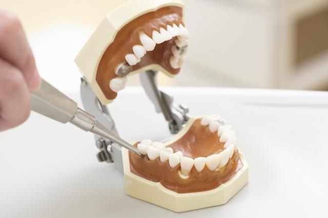 抜く 歯 神経